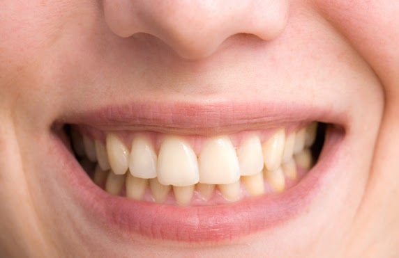 This is the image for the news article titled What Causes Crooked Teeth?